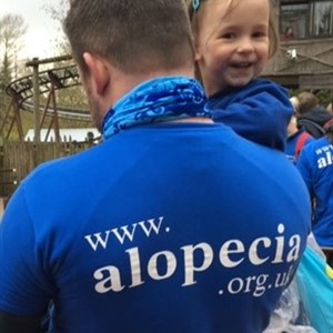 Meg's Cakes fundraising page for Alopecia UK