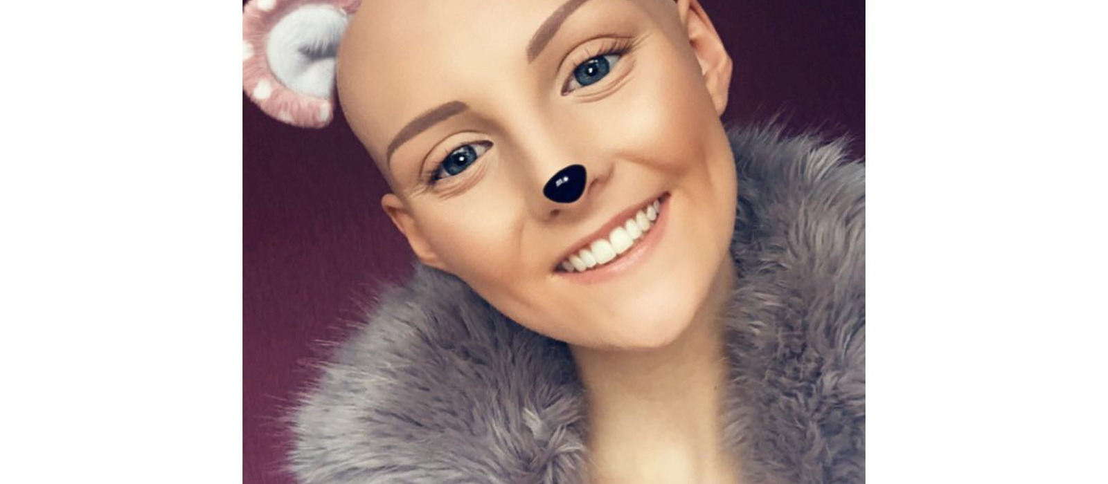 Abi and Johnny's fundraising page for Alopecia UK