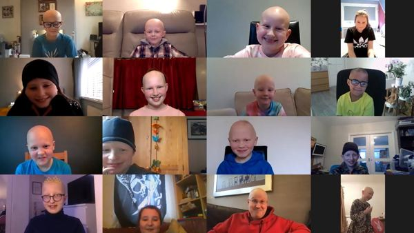 Alopecia UK interview with Matt Lucas