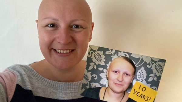 Ten Reflections of Ten Years Living with Alopecia