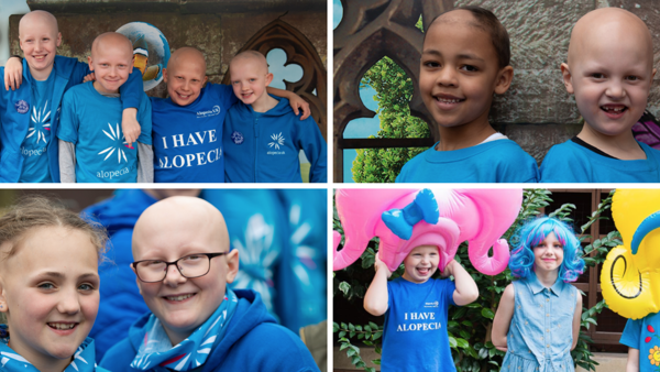 School Pack Funding Success for Alopecia UK