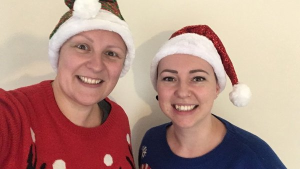 12 Ways This Christmas (to support Alopecia UK)