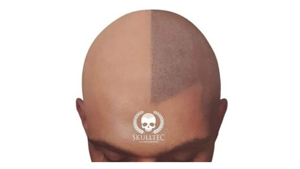 Skulltec Hair Loss clinic