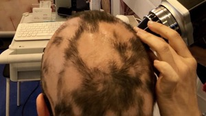 Early treatment to prevent Alopecia Areata Progression